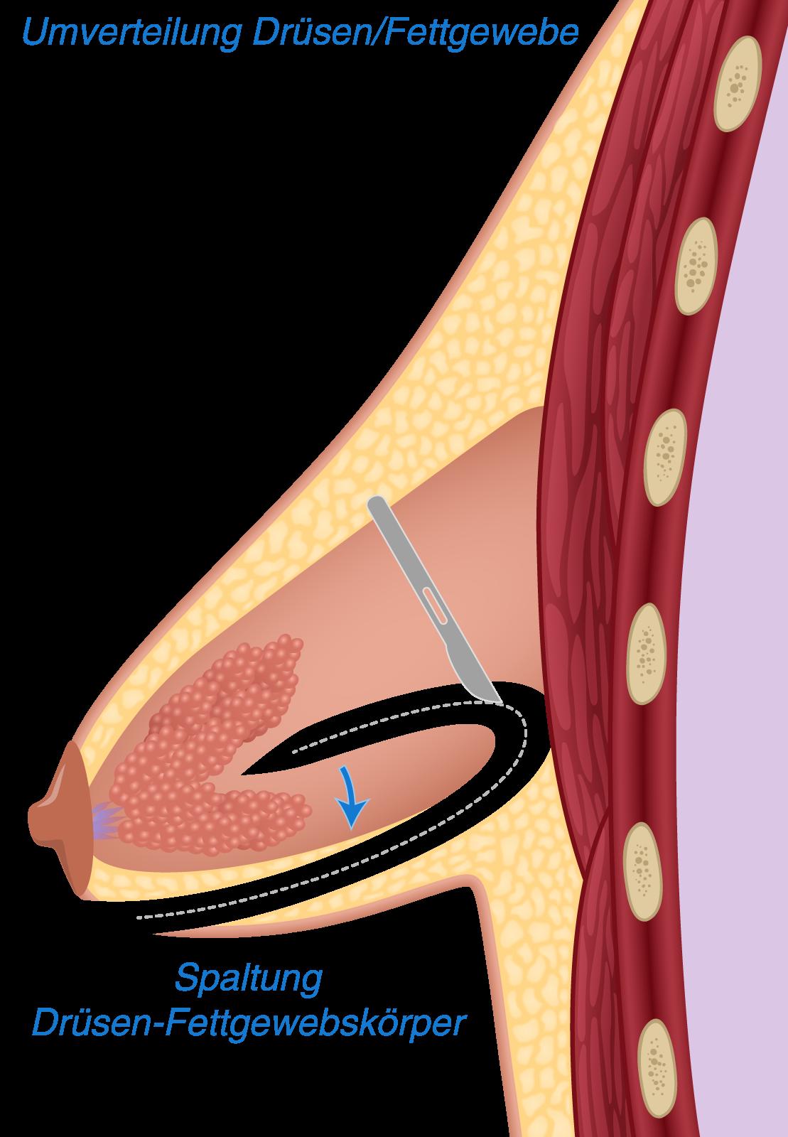 Operation Schlauchbrust - Umverteilung Fett Drüsengewebe