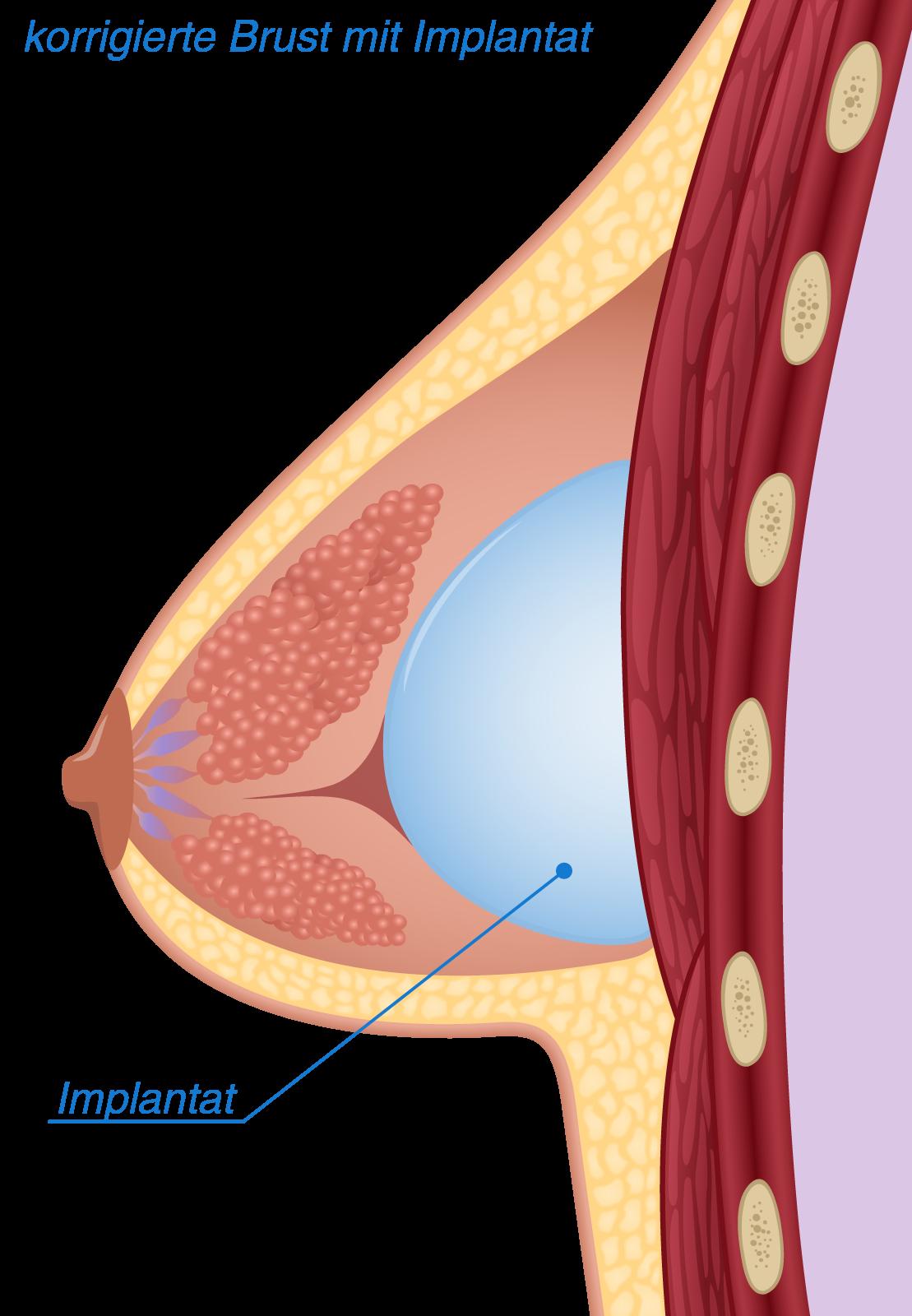 Implantat für tubuläre Brust
