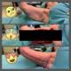 Oberarmstraffung-vorher-zwischendurch-nachher-apfolterer