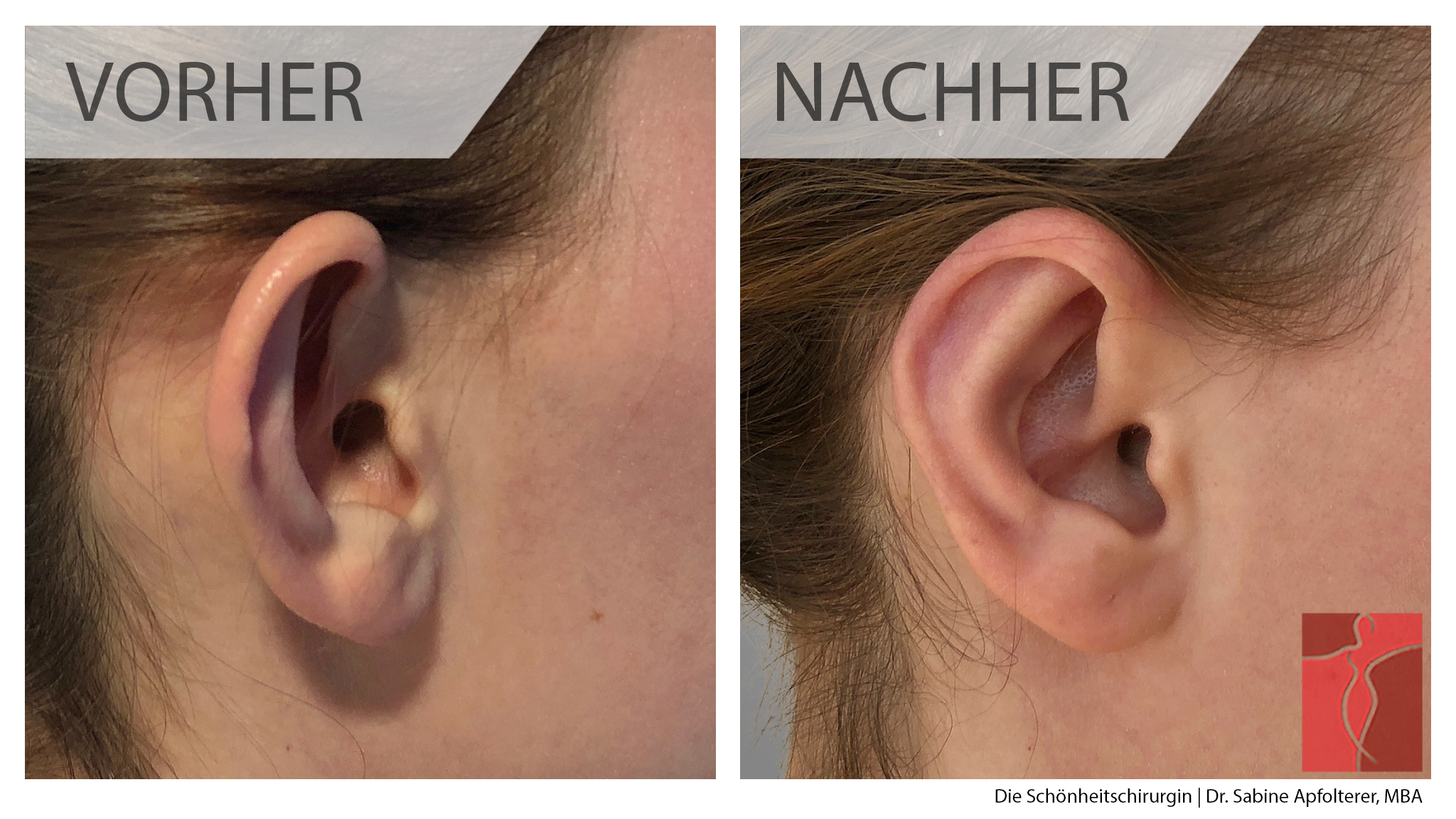 Anlegen fadenmethode erfahrungen ohren Ohren anlegen