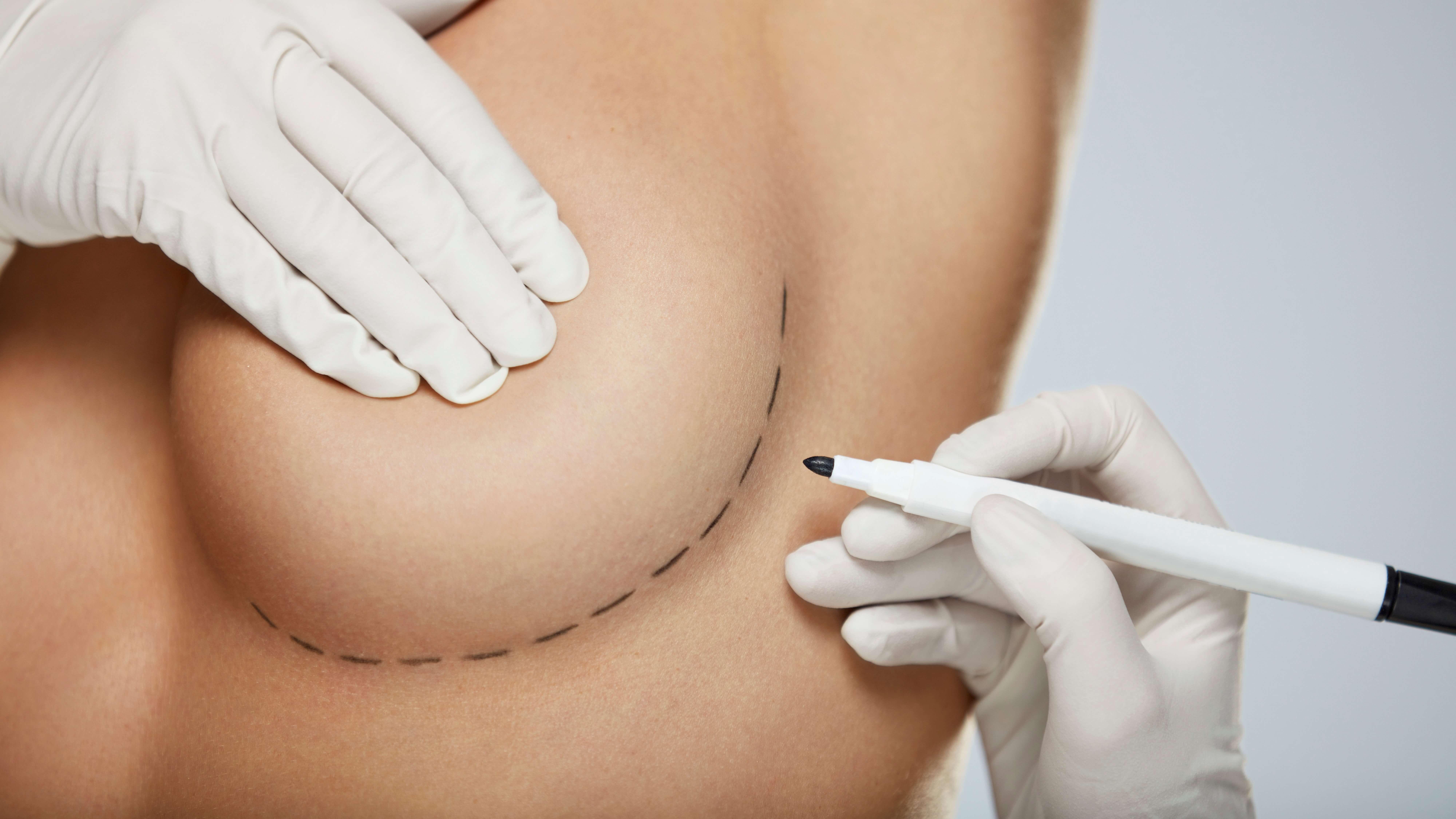 Brustvergrösserung bei schwachem Bindegewebe
