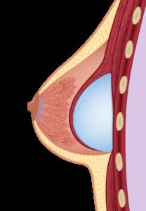 submuskulär - Implantat unter dem Muskel